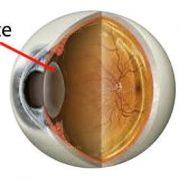 Comment guérir la cataracte rapidement naturellement ?